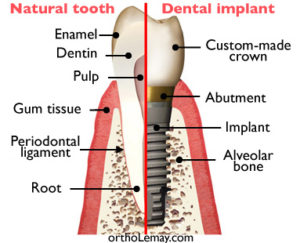 The dental implant tooth system