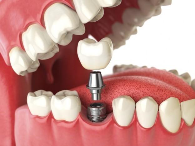 Best dental implants Buffalo NY