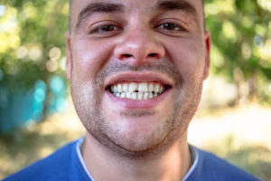 Obvious cracked tooth