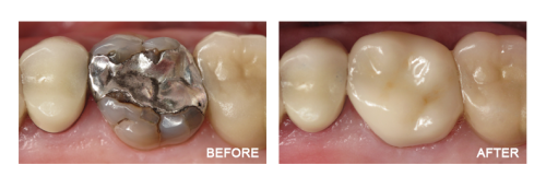 closeup of crown for cracked tooth