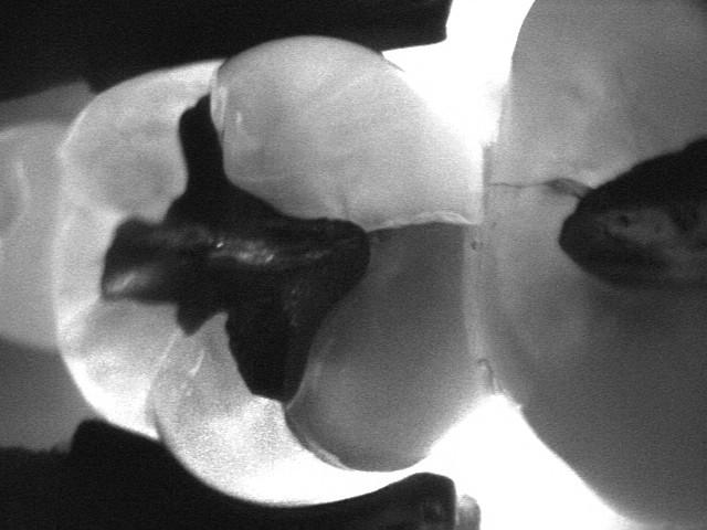 closeup of cracked molar x-ray