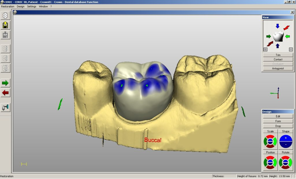 CEREC scan