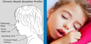 Chronic Mouth Breather Profile