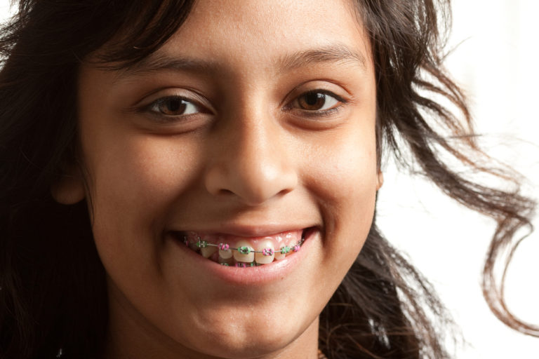young girl with metal braces displaying southtowns orthodontic services