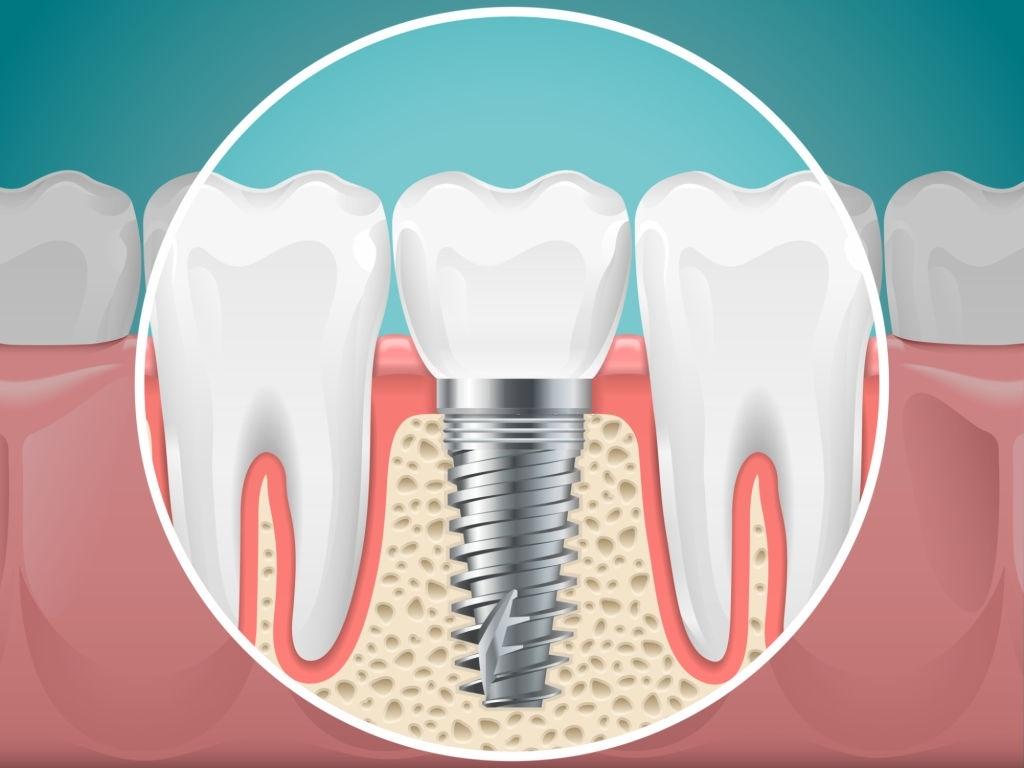 Dental Implants in Buffalo NY